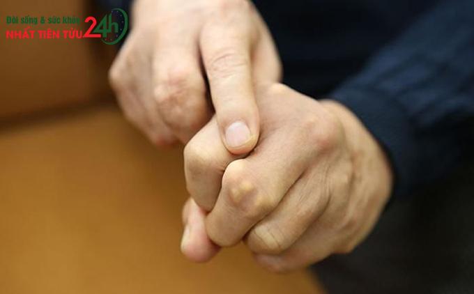 Bệnh gout với những cục tophi ở các khớp ngón tay