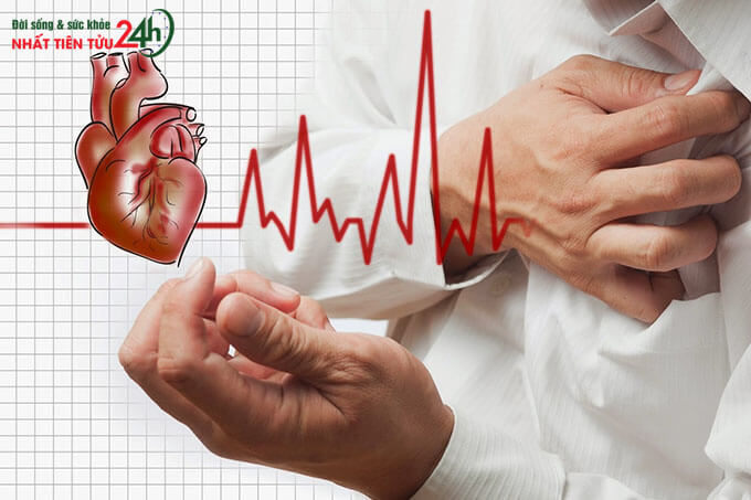 Bệnh tim mạch là gì